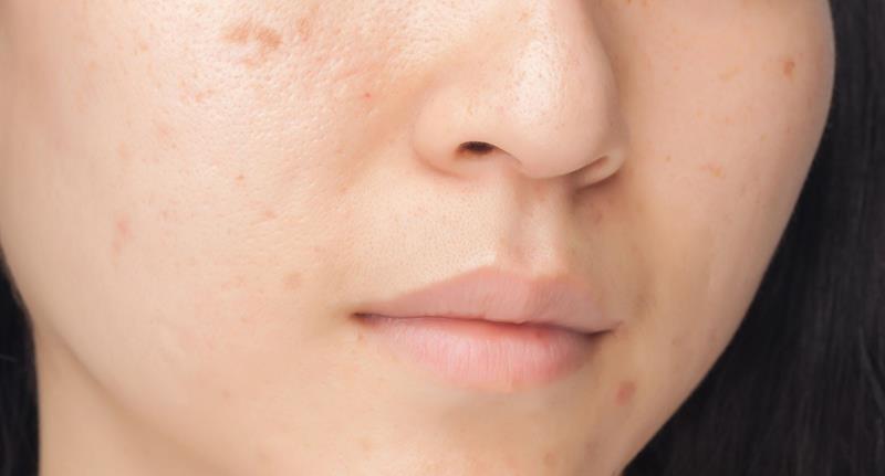 Domowa maseczka na blizny potrądzikowe, ajk leczyć blizny, ajk się pozbyć blizn, zdrowa skóra